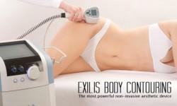 exilis-treatment